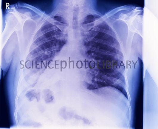 Reversed organs, X-ray