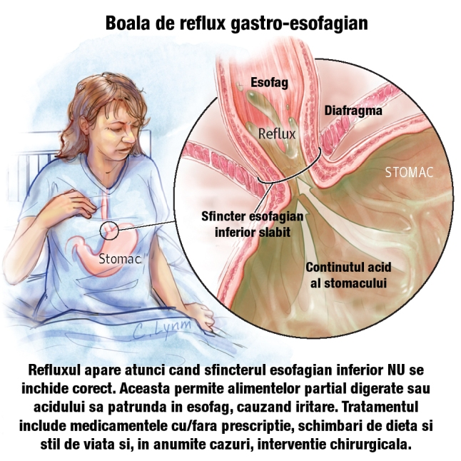 Viata cu reflux acid (sau boala de reflux gastroesofagian)