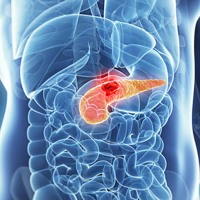 Ultimul an din viata unui pacient cu cancer pancreatic