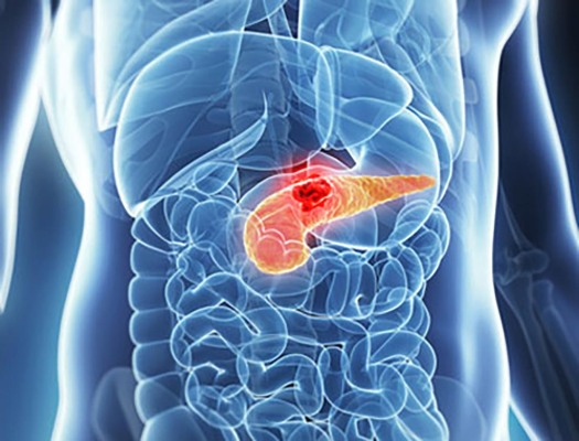 cancer pancreatic