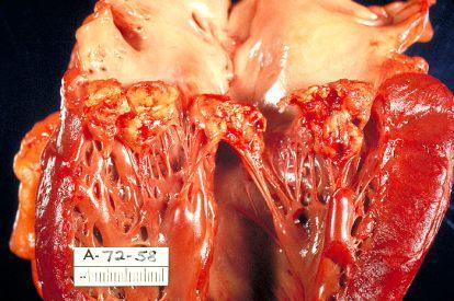 Haemophilus_parainfluenzae Endocarditis