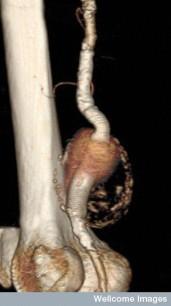Imagine posterioara a unui anevrism popliteal in piciorul unui pacient de 84 de ani. Femurul este in stanga, artera popliteala apare intre pulpa inferioara si gamba superioara. Anevrismul este in centrul imaginii. Un anevrism este o umflatura localizata a unei artere, care se prezinta ca o protuberanta ca un balon. Anevrismele apar in general la vasele de sange abdominale (AAA - anevrisme aortice abdominale) si la cele ale picioarelor, ca in poza. Anevrismele care nu sunt rupte nu prezinta simptome de obicei. 75% dintre pacienti nu supravietuiesc ruperii unui anevrism. Daca pacientul este internat rapid si este tratat de un chirurg vascular, rata morbiditatii scade la 5%. Un anevrism care prezinta risc de rupere poate fi tratat prin abaterea fluxului de sange. Stenturi sunt folosite pentru asta, intr-o procedura numita Repararea anevrismelor endovasculare popliteale (PEVAR). CT reconstruit 3D