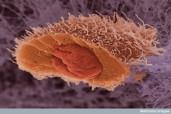 """Aceasta celula provine dintr-un carcinom cu celule scuamoase, un tip de cancer al pielii. Celula a fost inghetata si """"sectionata"""" pentru a i se vedea nucleul. In nucleu exista ADN-ul unde mutatiile se aduna, rezultand in reproducerea necontrolata a celulei (cancer). Microscop electronic cu baleiaj"""