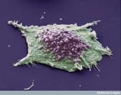 Celula de cancer pulmonar. O singura celula - crescuta intr-o cultura de celule epiteliale pulmonare canceroase. Zona purpurie arata pustule. Pustulele sunt umflaturi neregulate in membrana celulalra a celulei, cauzate de decuplarea localizata a citoscheletului, printr-o varietate de procese celulare (locomotie, divizie si stres fizic sau chimic). Zona verde arata o zona a celulei unde pustulele nu apar sau nu sunt vizibile. Microscop electronic cu baleiaj