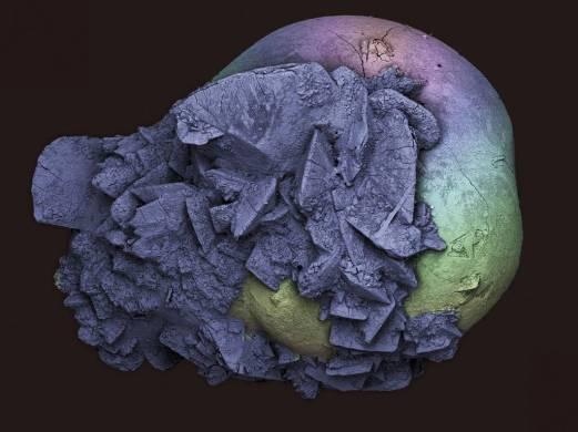Imagine a unui calcul renal extras din autorul fotografiei. Calculii renali se formeaza atunci cand sarurile, mineralele si subst. chimice din urina (oxalat de calciu si acid uric) se grupeaza si se solidifica. Dimensiunea calculilor variaza. Cele mici pot fi eliminate natural, cele mai mari se blocheaza in rinichi sau in uretere/uretra, cauzand dureri foarte mari sau chiar o infectie. Dimensiunea acestui calcul era de 2 mm. Microscopie electronica cu baleiaj.