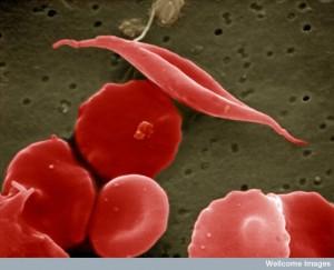 celula rosie in forma de secera si celule rosii normale