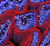 Capetele vililor sunt taiate, pentru a arata morfologia interna. Cu rosu se vede Actina-F, cu albastru se vad nucleii celulelor. Microscop electronic confocal + reconstructie 3D