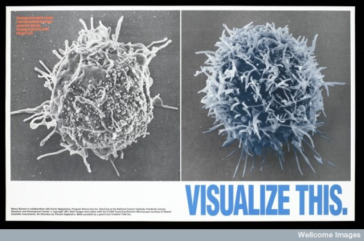 L0052324 Two enlarged images of T-cells one infected with HIV by the