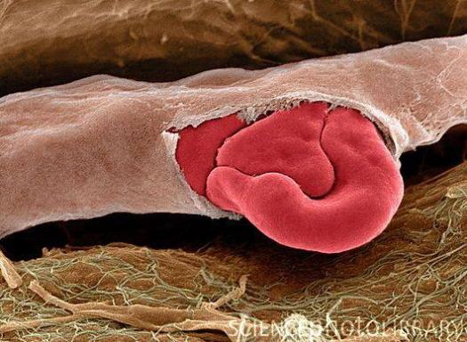 celula rosie iesind printr-o capilara rupta