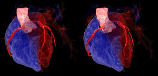 inima, aorta si arterele coronariene