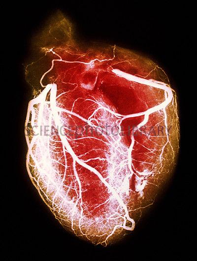 Coloured arteriogram of arteries of healthy heart