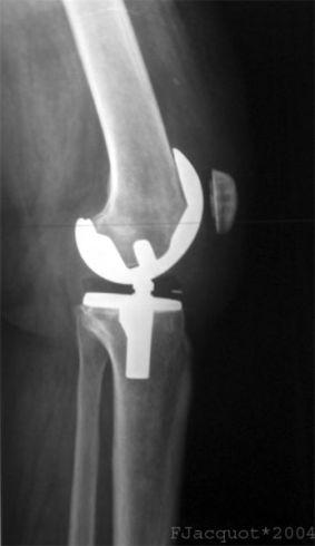 picior dupa artroplastie a genunchiului