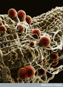 B0007349 Malaria parasites