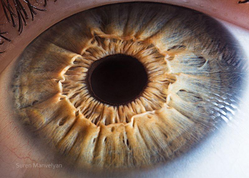 sub ce boli se pierde vederea