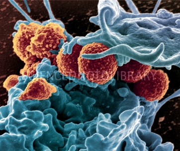 MRSA ingestion by white blood cell, SEM
