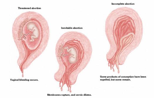 avort