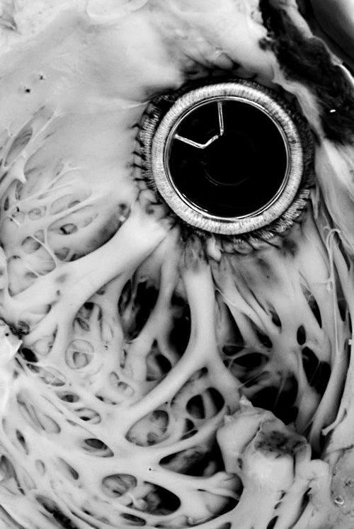 Shiley heart valve