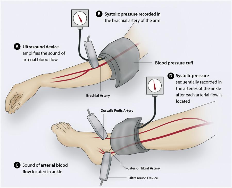 tensiune brat picior