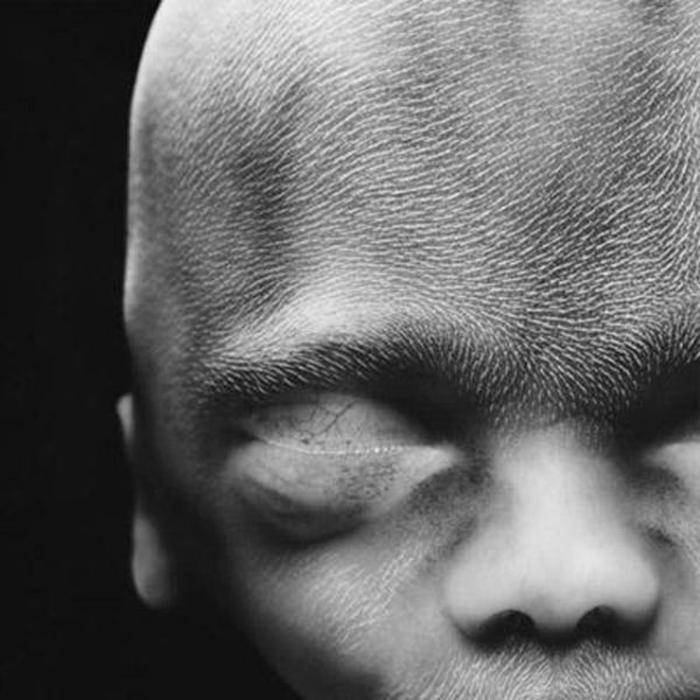 20 saptamani - lanugo (un par fin) ii acopera capul