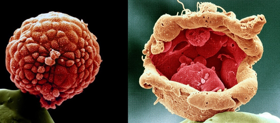 Blastocist si blastocist