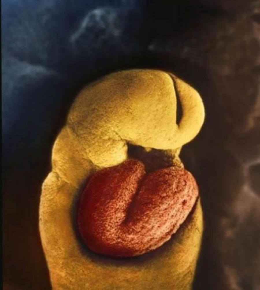 Inima incepe sa se formeze (24 zile)