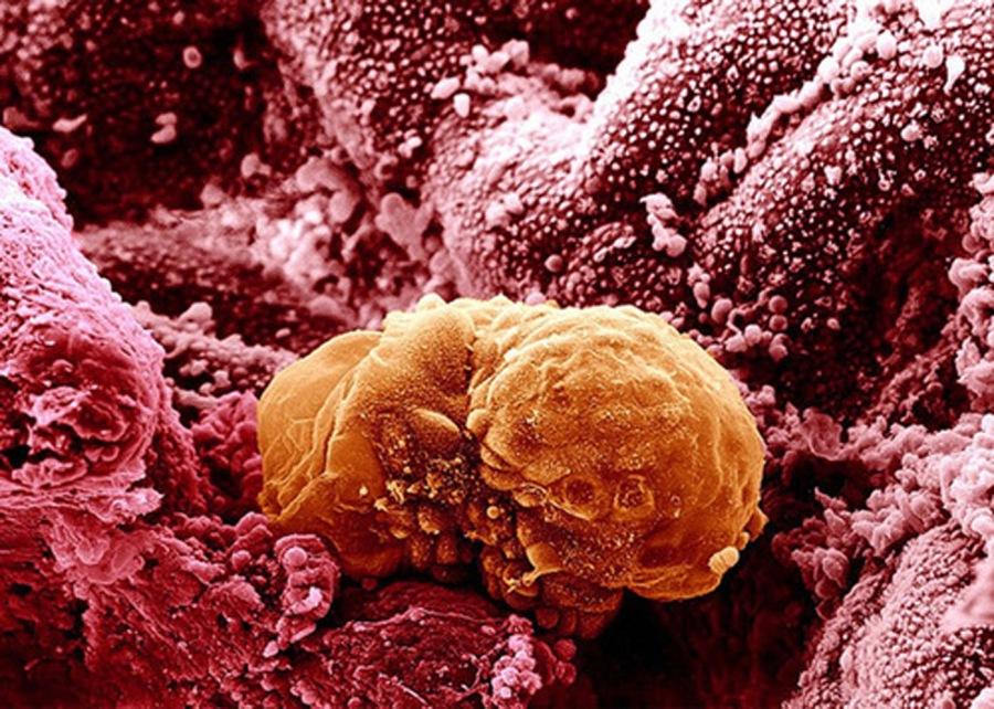 Embrion de 6 zile - morula