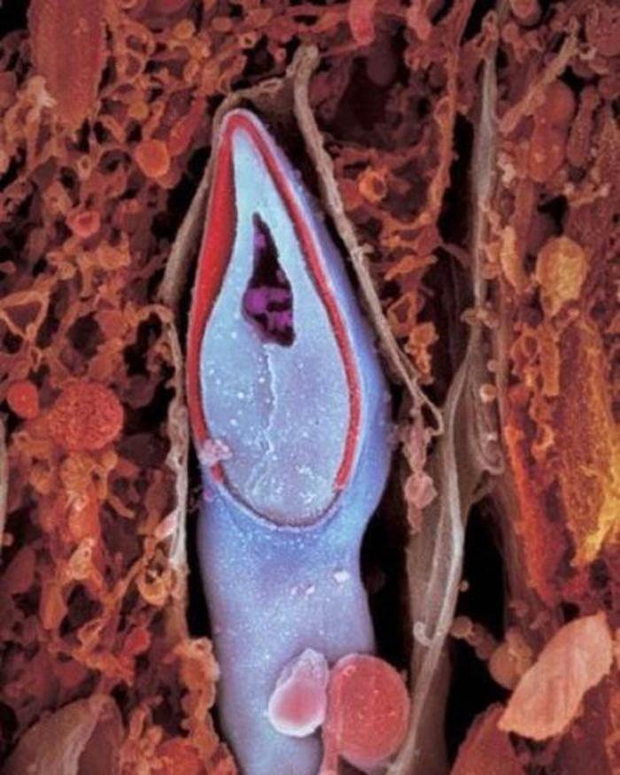 Cap de spermatozoid