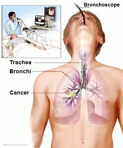 Bronchoscopie