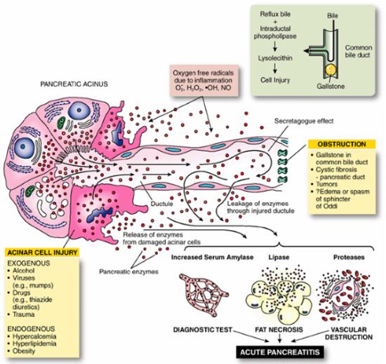 pancreatita acuta