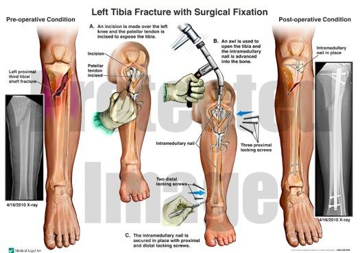 fractura tibie