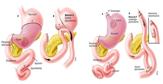 gastrectomii