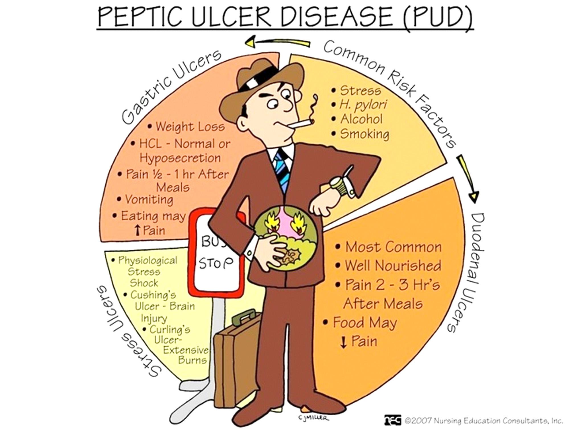 ulcer duodenal tratament medicamentos