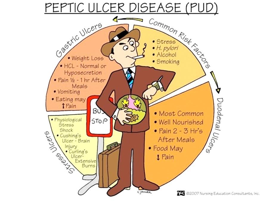 ulcer gastroduodenal