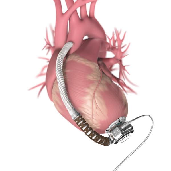 Ce este o semi-inima artificiala(VAD)?