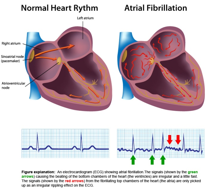 normal-heart-rythm-vs-atrial-fibrillation