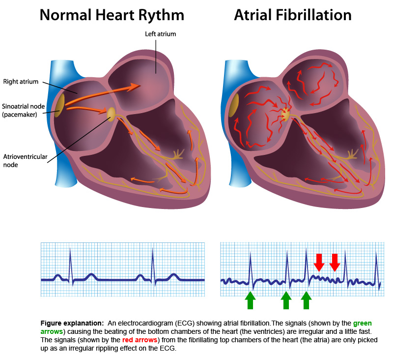 normal-heart-rythm-vs-atrial-fibrillation