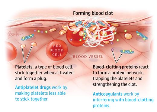 antiagregante plachetare anticoagulante